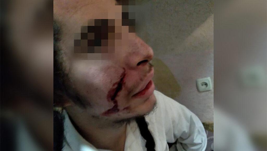 Zsidó fiatalokra támadtak egy ukrán városban